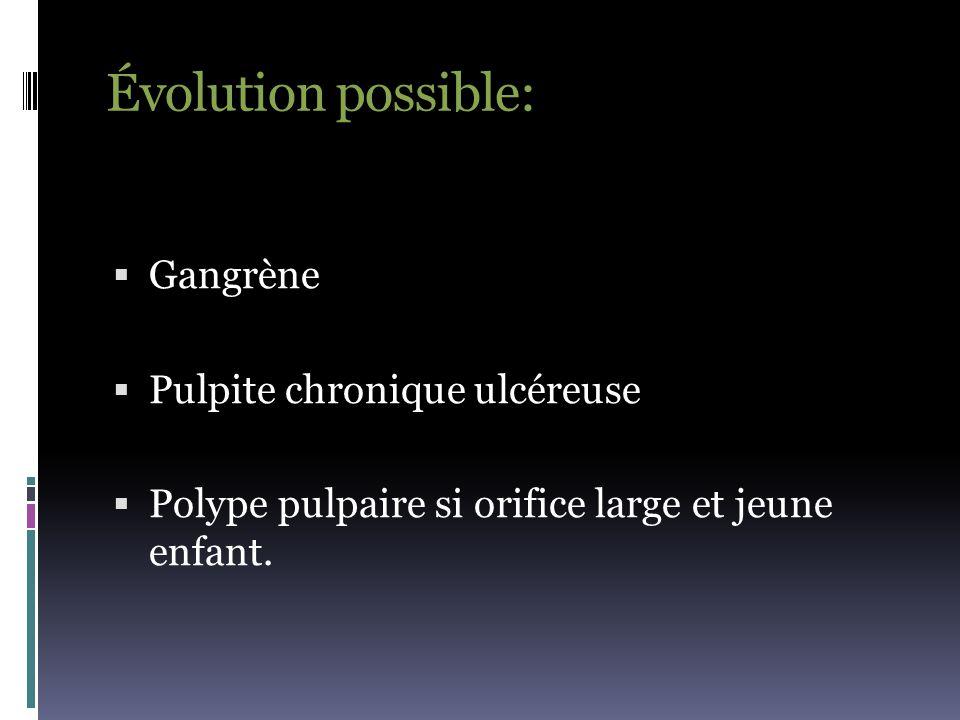Évolution possible: Gangrène Pulpite chronique ulcéreuse