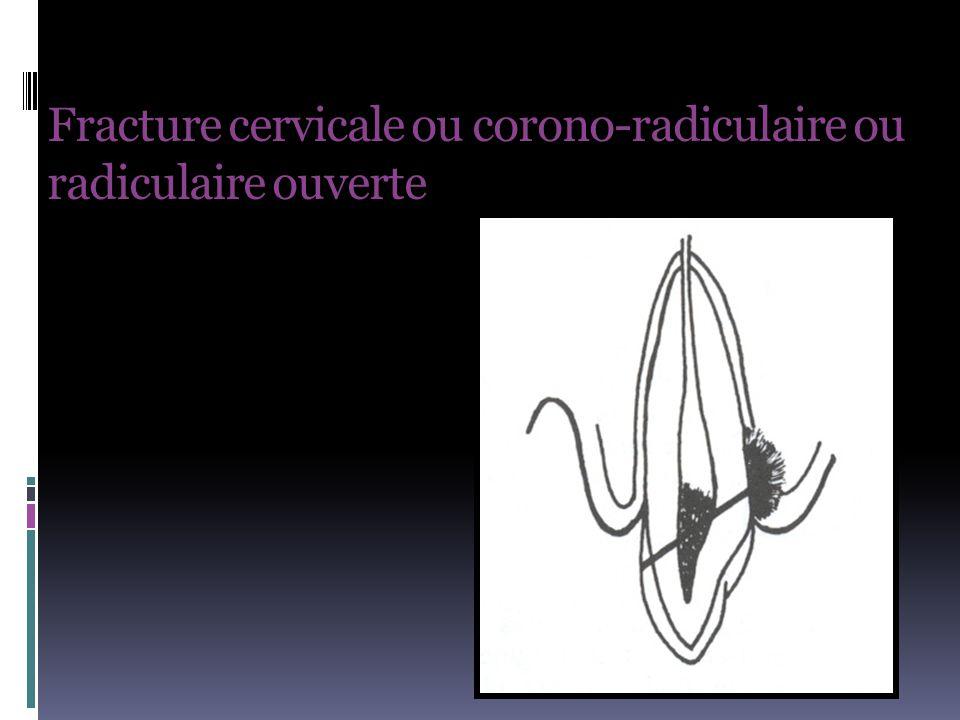 Fracture cervicale ou corono-radiculaire ou radiculaire ouverte