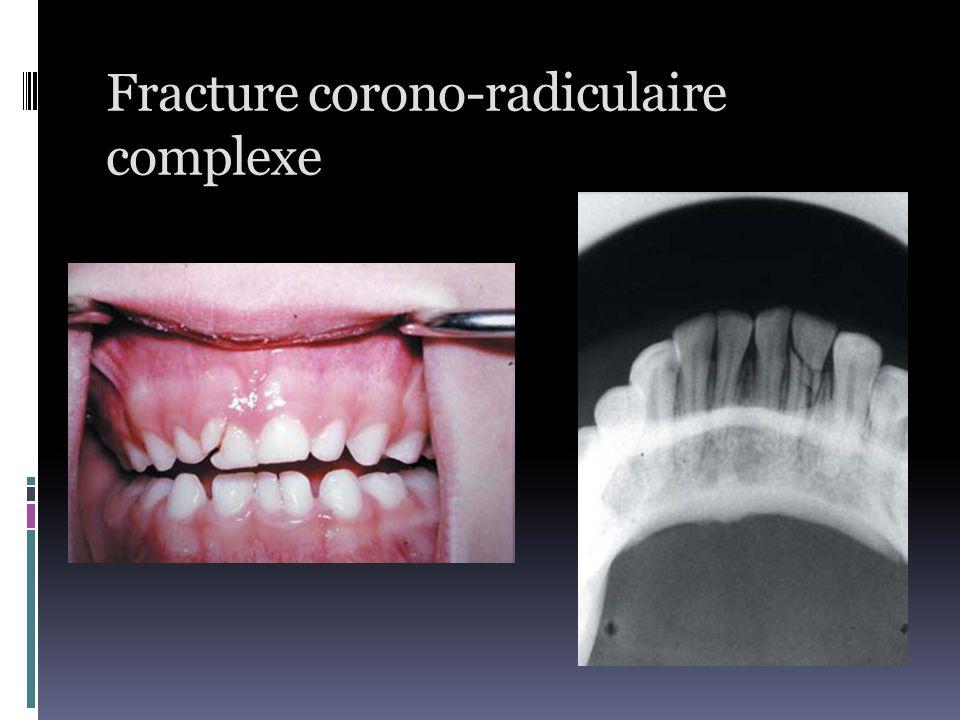 Fracture corono-radiculaire complexe