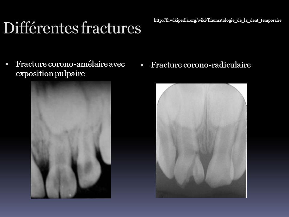 Différentes fractures