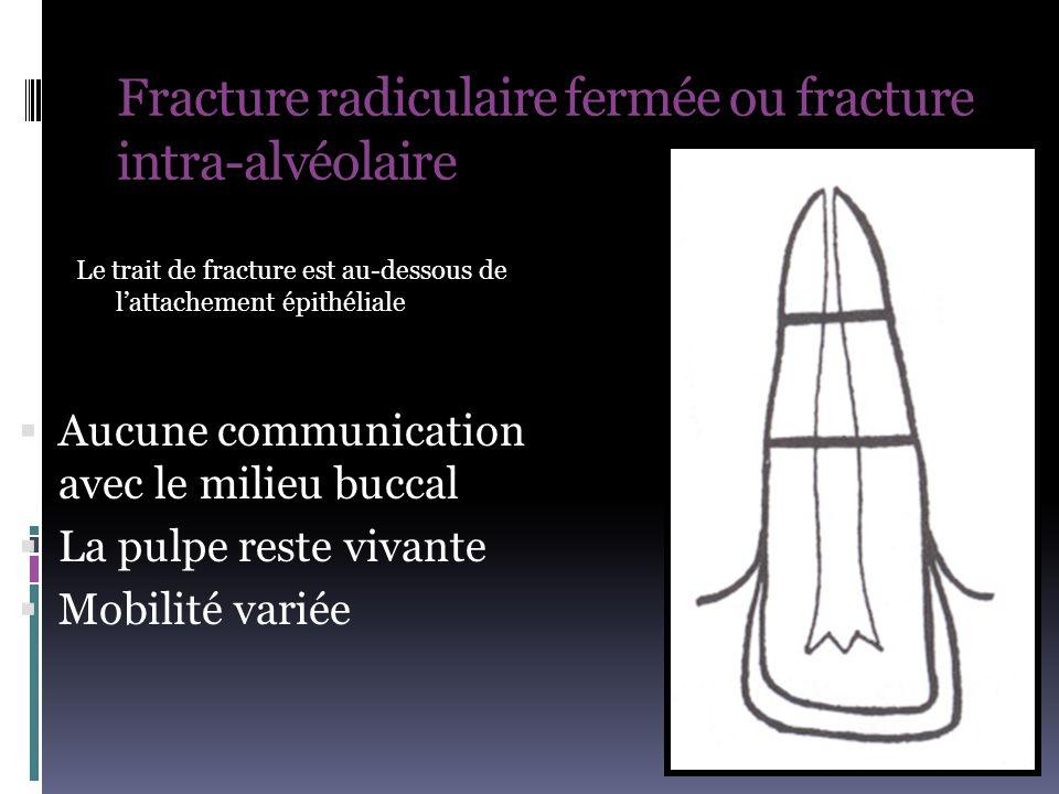 Fracture radiculaire fermée ou fracture intra-alvéolaire