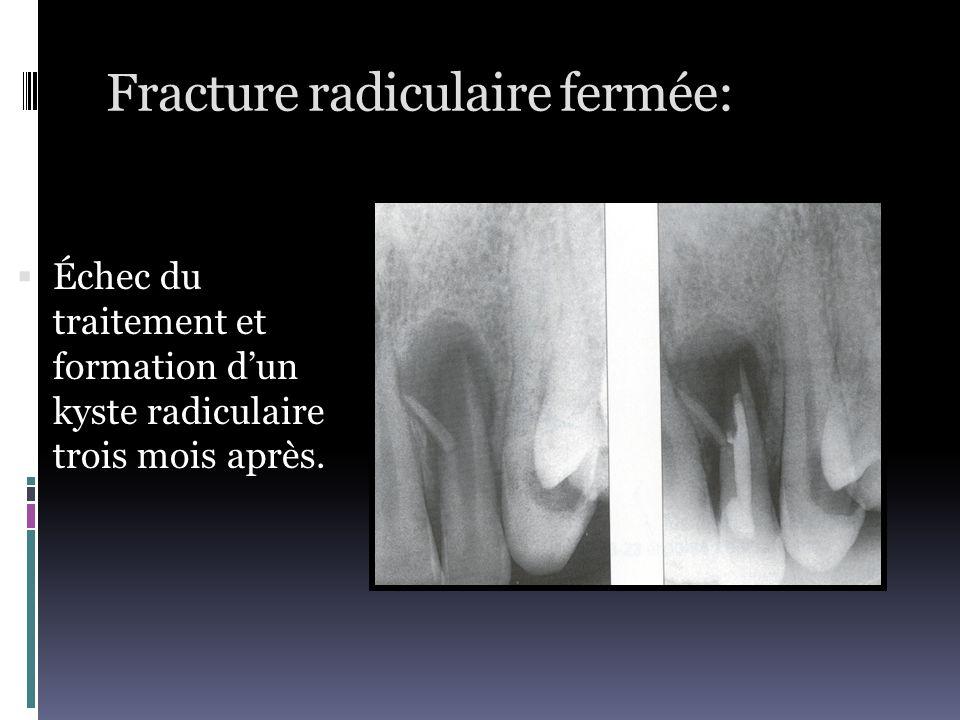 Fracture radiculaire fermée: