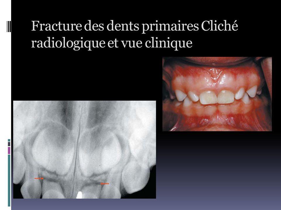 Fracture des dents primaires Cliché radiologique et vue clinique
