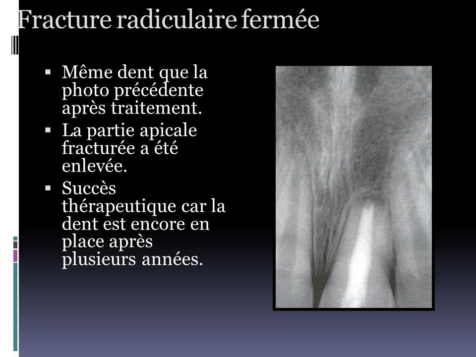 Fracture radiculaire fermée