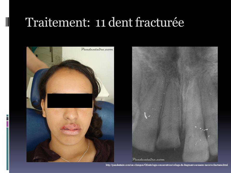 Traitement: 11 dent fracturée