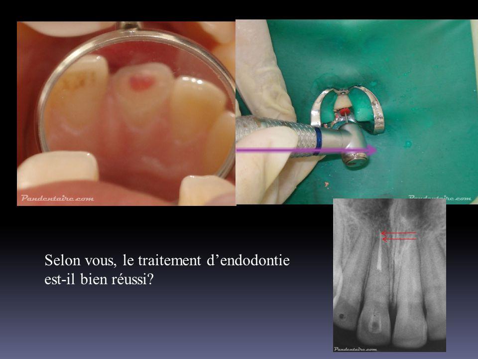 Selon vous, le traitement d'endodontie