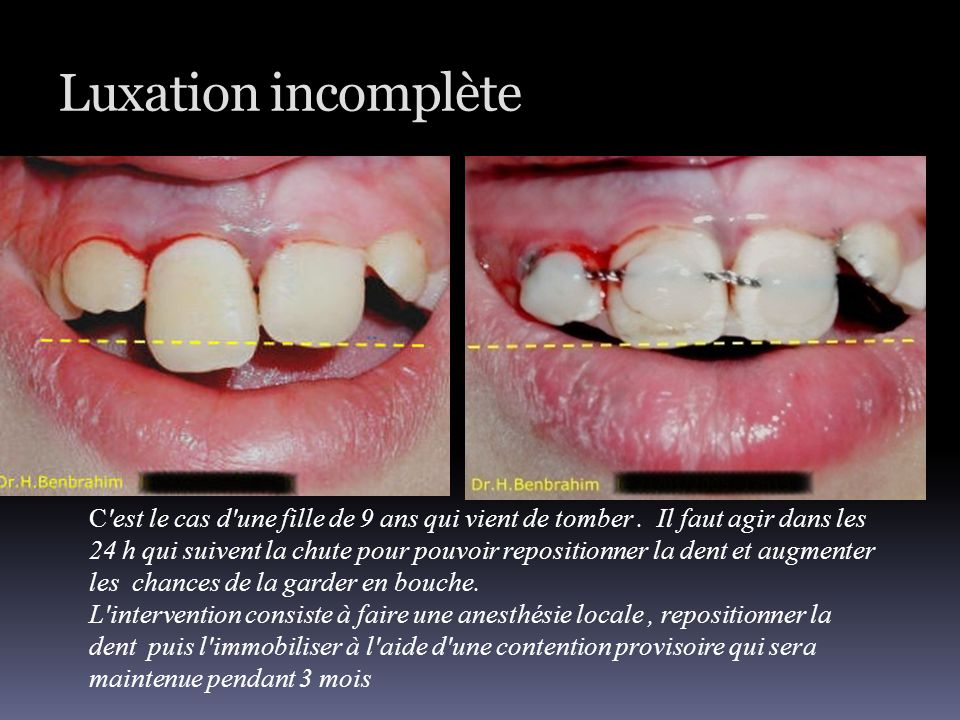 Luxation incomplète