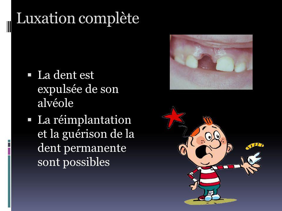 Luxation complète La dent est expulsée de son alvéole
