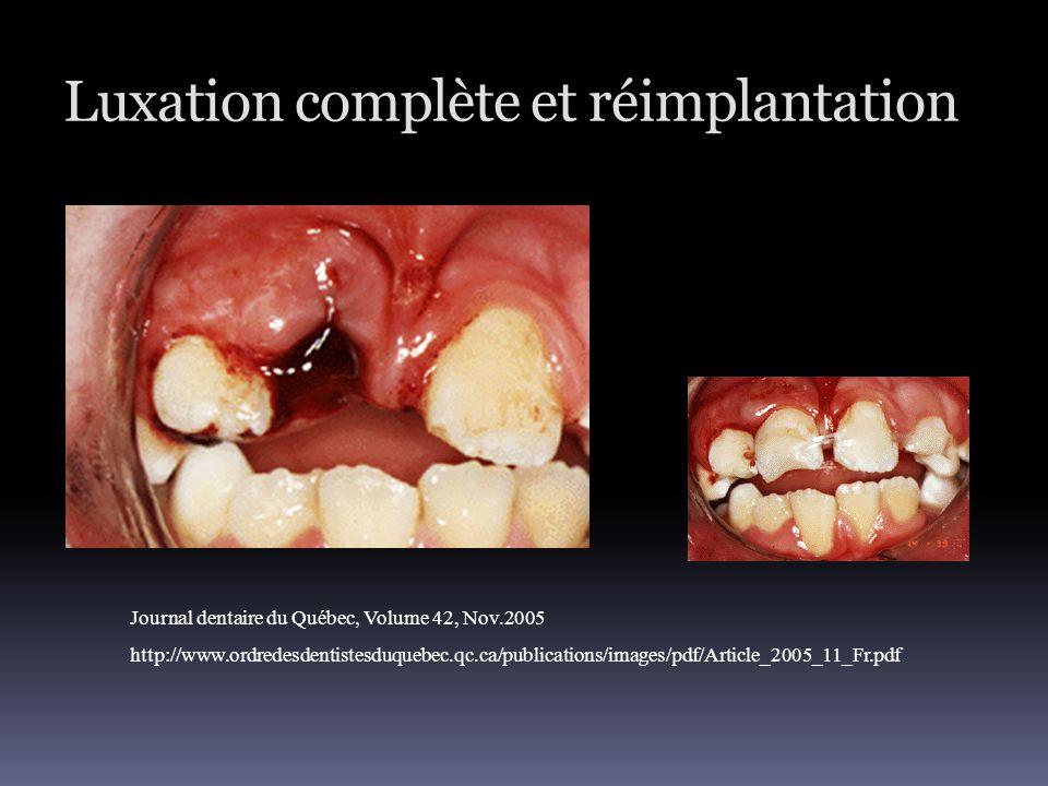 Luxation complète et réimplantation