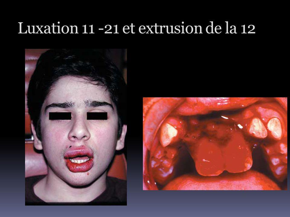 Luxation 11 -21 et extrusion de la 12