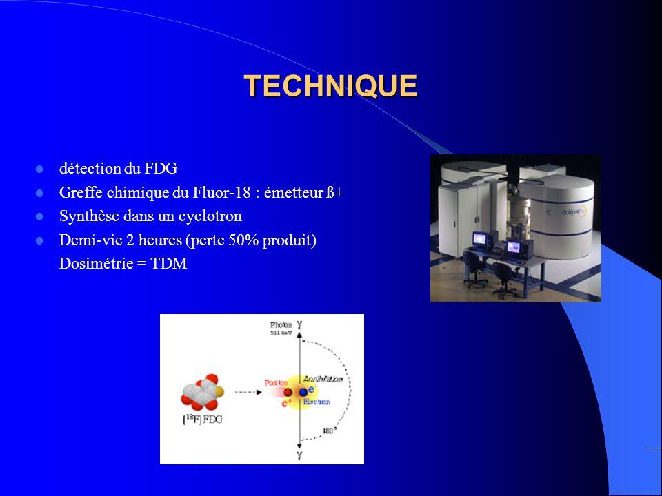 TECHNIQUE détection du FDG Greffe chimique du Fluor-18 : émetteur ß+