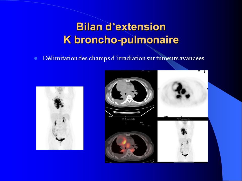 Bilan d'extension K broncho-pulmonaire