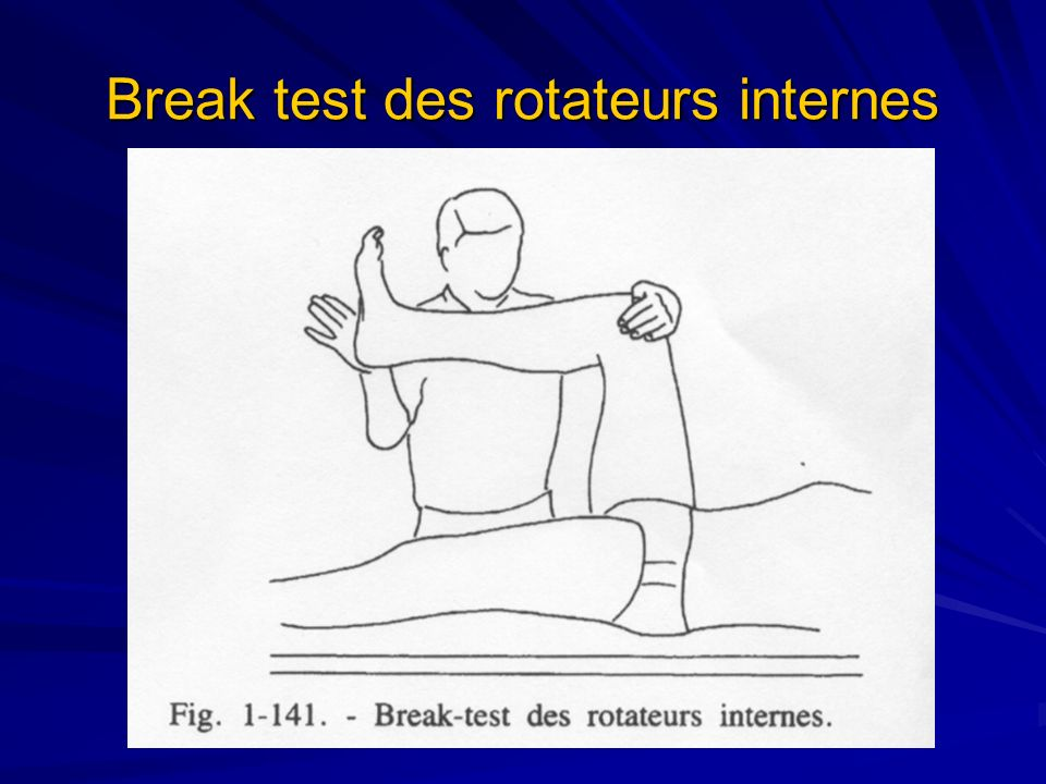 Break test des rotateurs internes