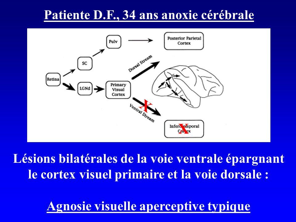 Agnosie visuelle aperceptive typique