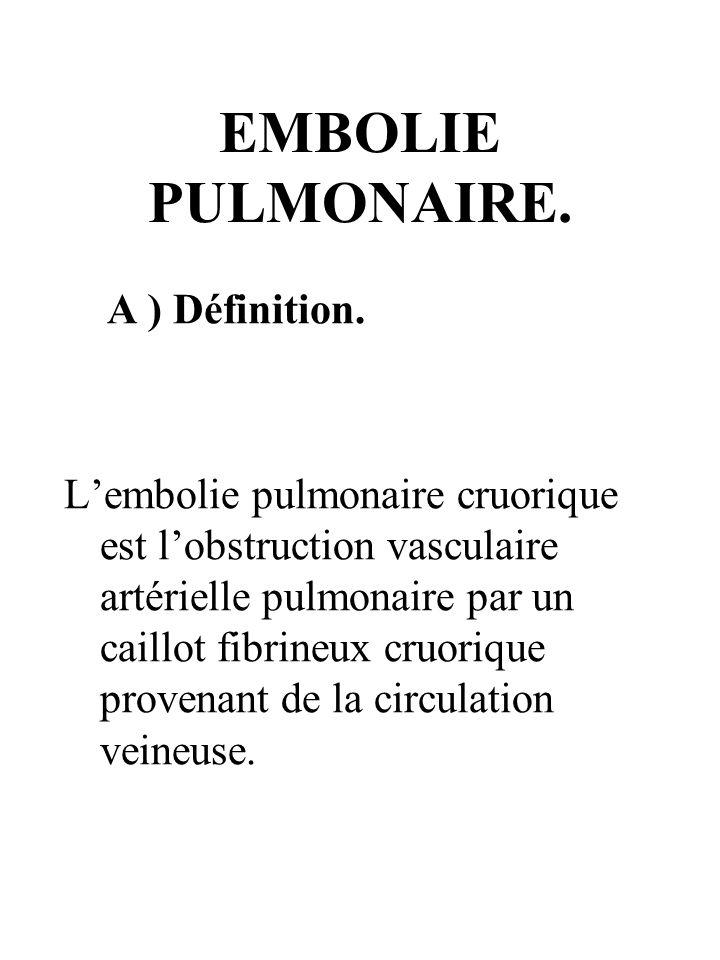 EMBOLIE PULMONAIRE. A ) Définition.