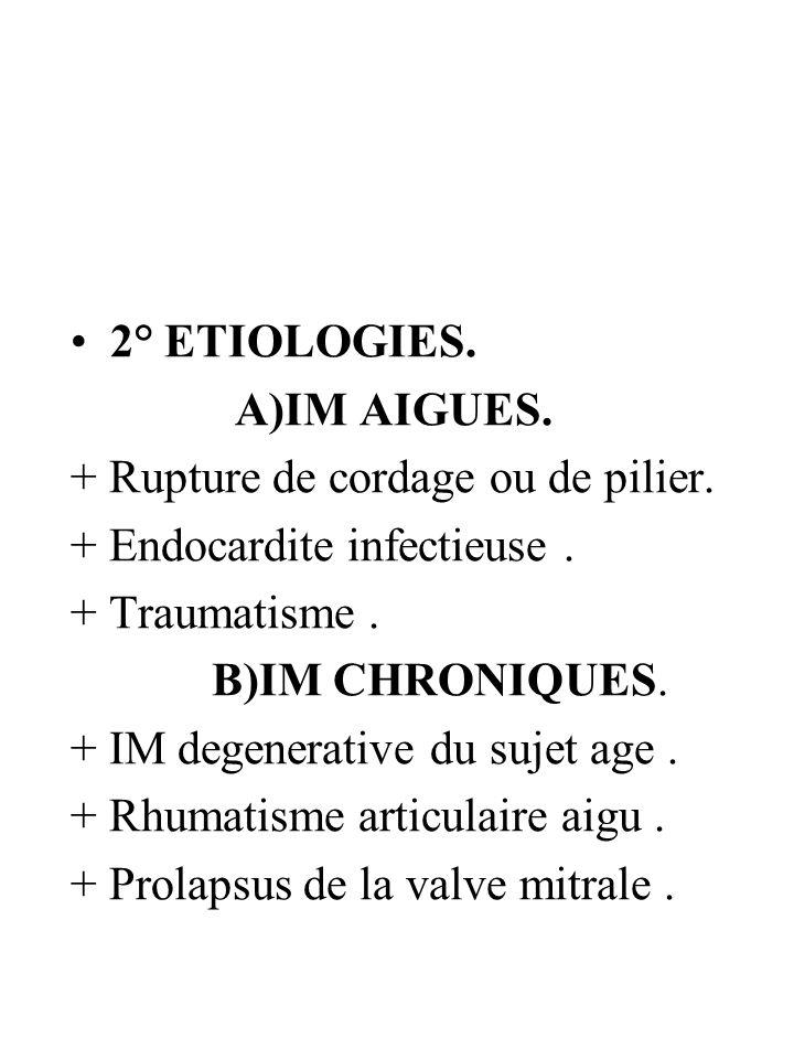 2° ETIOLOGIES. A)IM AIGUES. + Rupture de cordage ou de pilier. + Endocardite infectieuse . + Traumatisme .