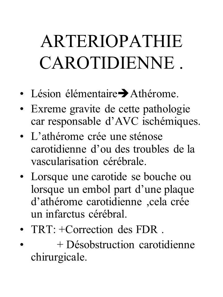 ARTERIOPATHIE CAROTIDIENNE .