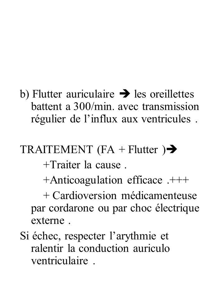 b) Flutter auriculaire  les oreillettes battent a 300/min