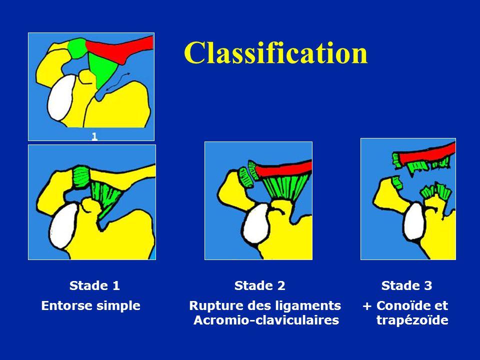 Classification Stade 1 Stade 2 Stade 3