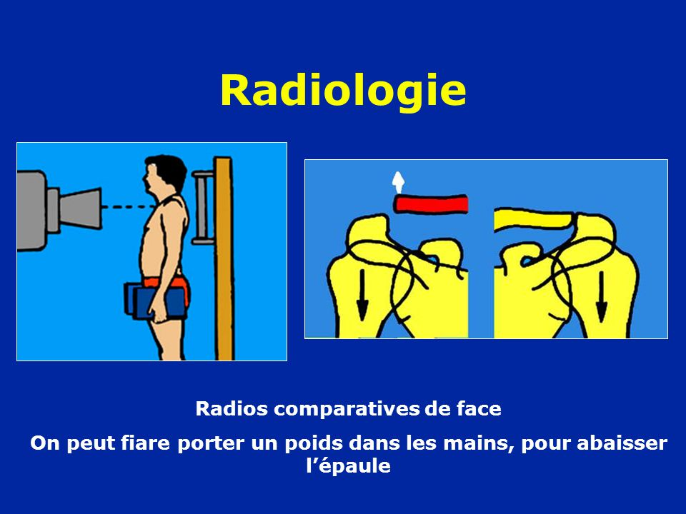 Radiologie Radios comparatives de face