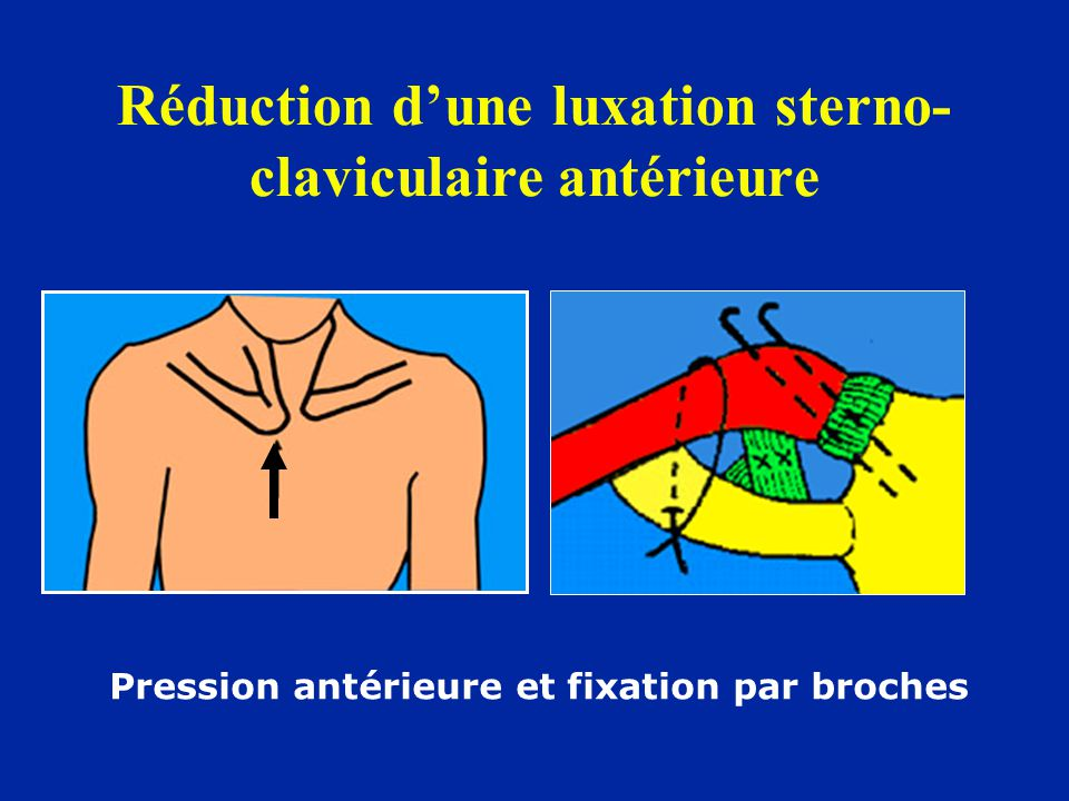 Réduction d'une luxation sterno-claviculaire antérieure