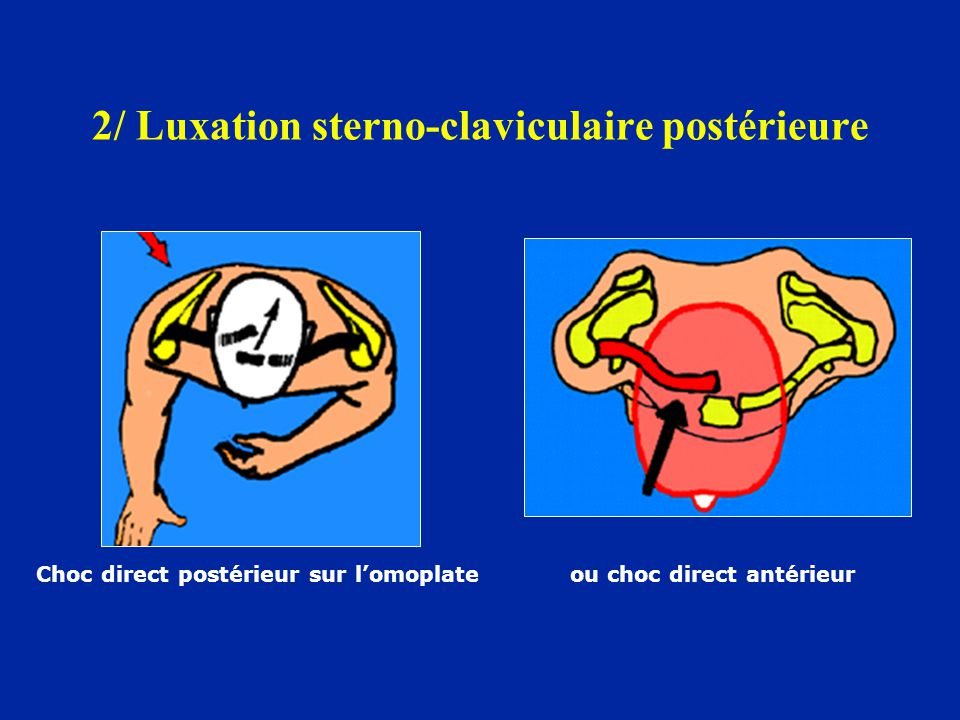 2/ Luxation sterno-claviculaire postérieure