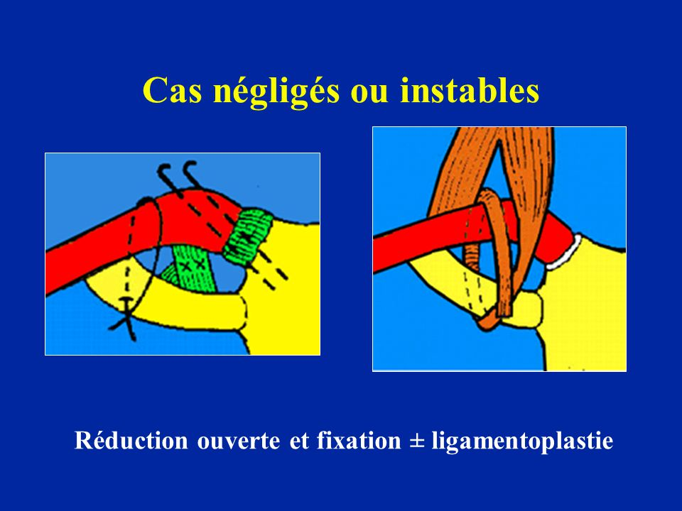 Cas négligés ou instables