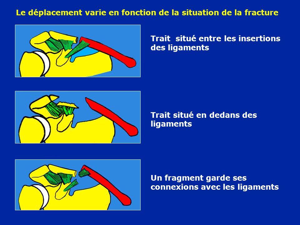 Le déplacement varie en fonction de la situation de la fracture