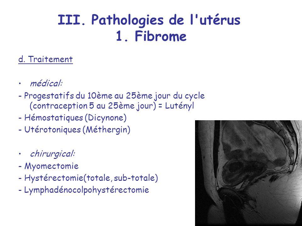 III. Pathologies de l utérus 1. Fibrome