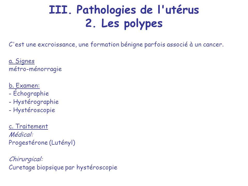 III. Pathologies de l utérus 2. Les polypes