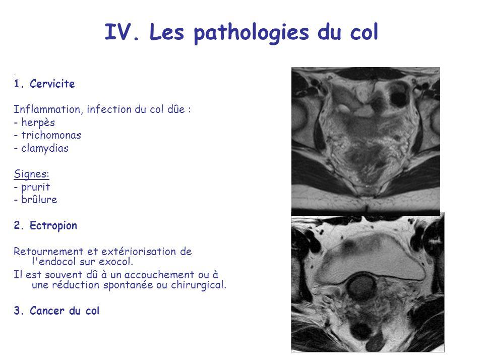 IV. Les pathologies du col