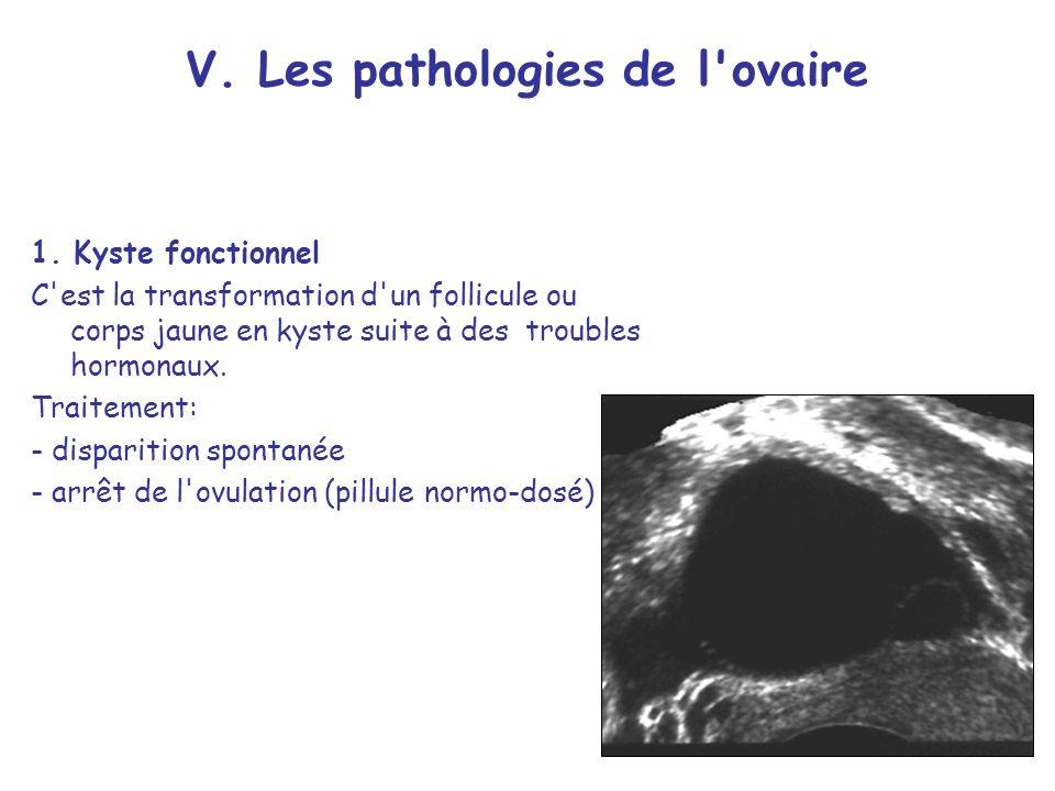 V. Les pathologies de l ovaire