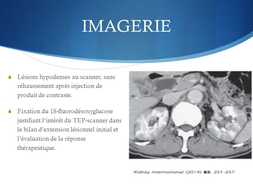 IMAGERIE Lésions hypodenses au scanner, sans réhaussement après injection de produit de contraste.