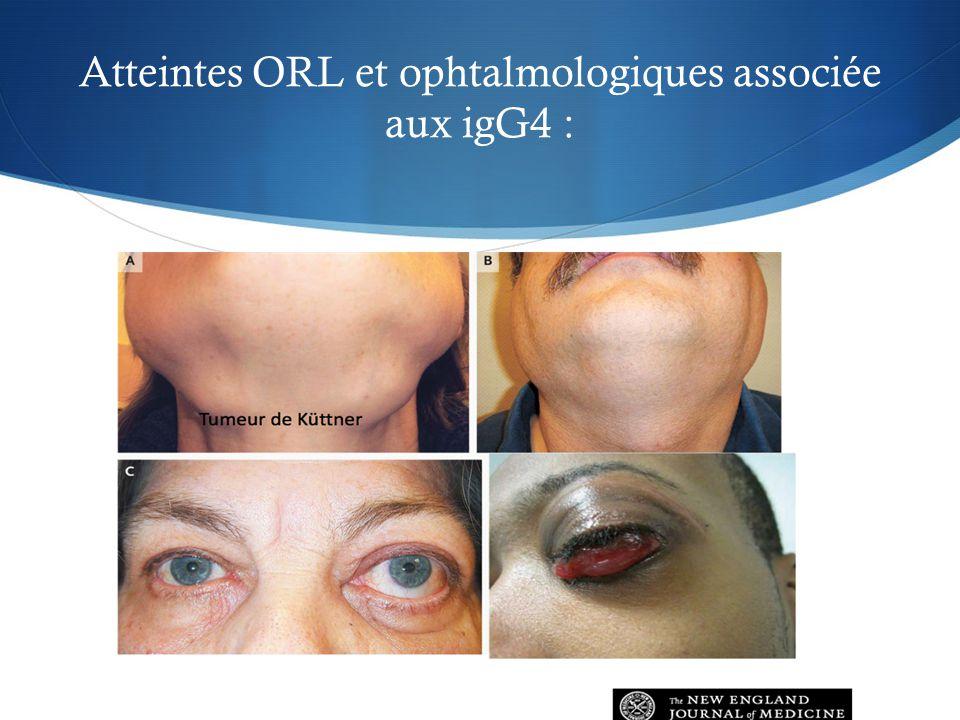 Atteintes ORL et ophtalmologiques associée aux igG4 :