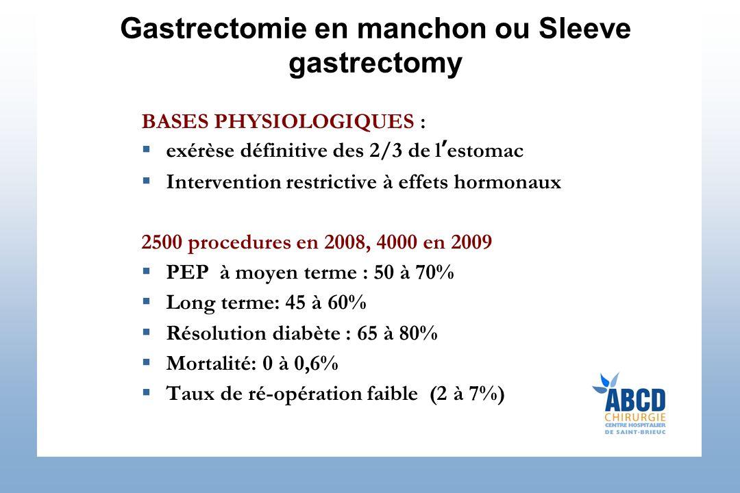 Gastrectomie en manchon ou Sleeve gastrectomy