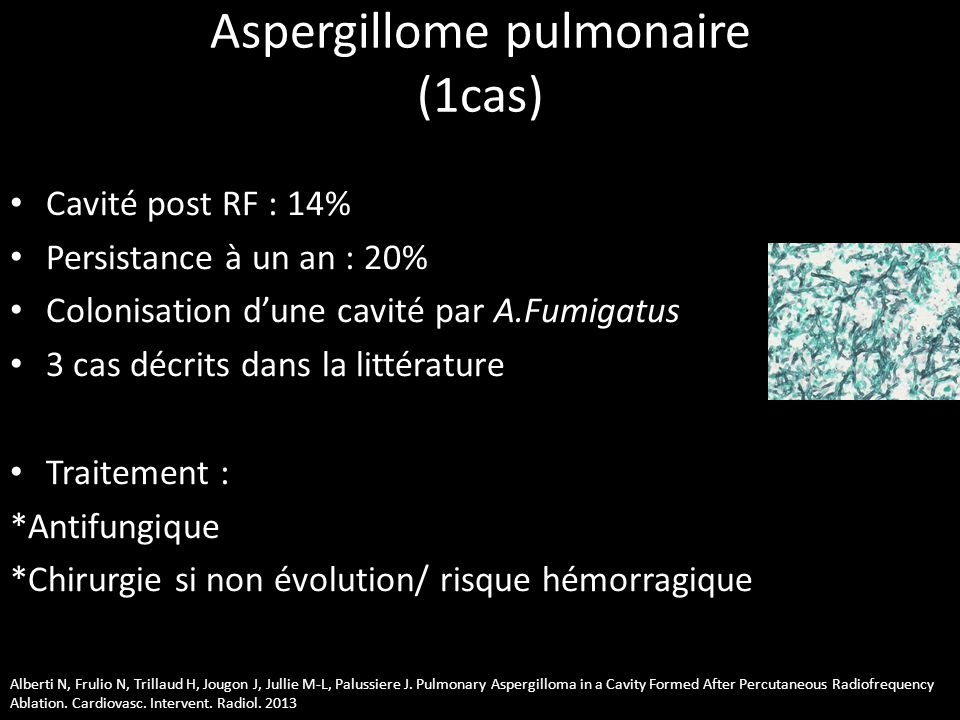 Aspergillome pulmonaire (1cas)