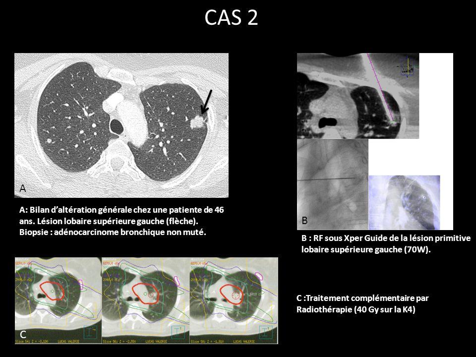 CAS 2 A. A: Bilan d'altération générale chez une patiente de 46 ans. Lésion lobaire supérieure gauche (flèche).