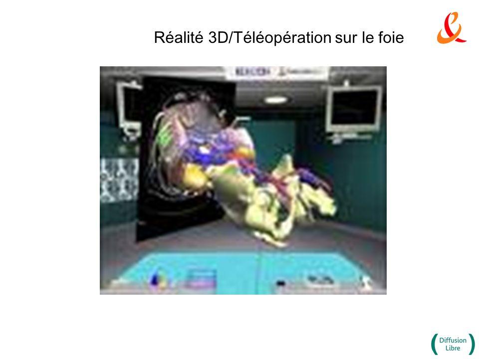 Réalité 3D/Téléopération sur le foie