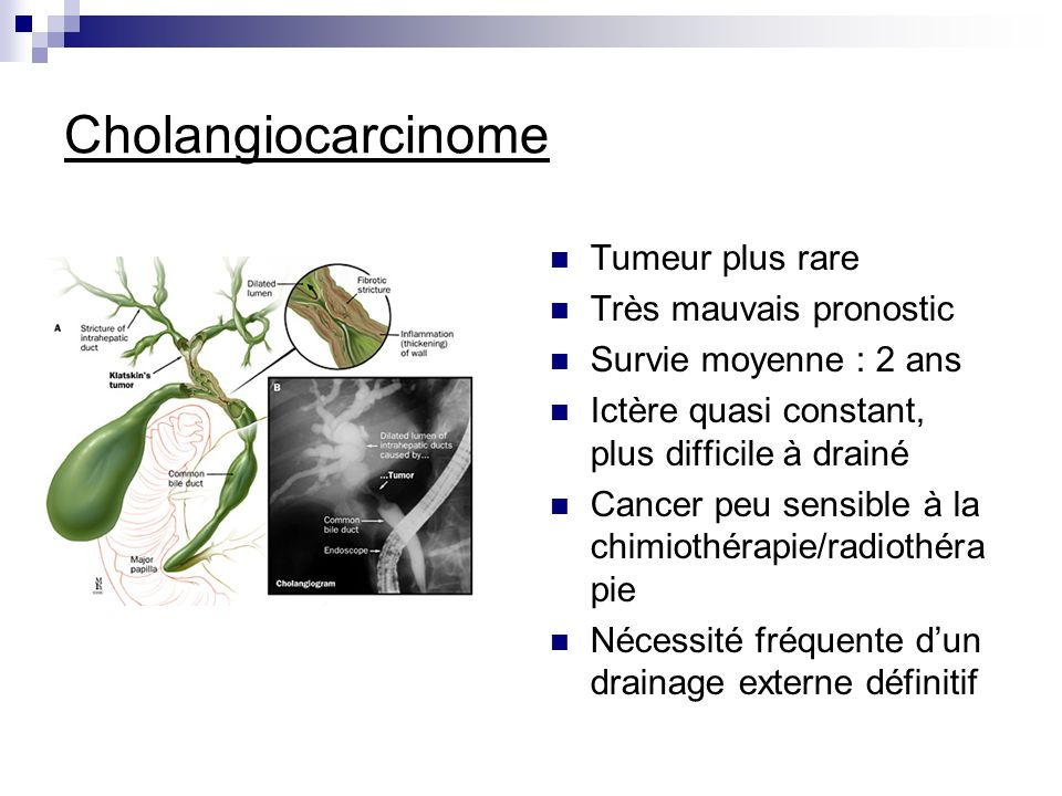Cholangiocarcinome Tumeur plus rare Très mauvais pronostic