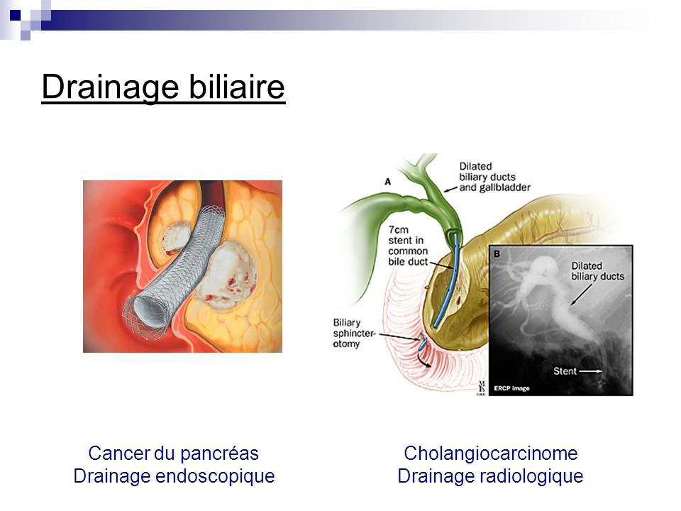 Drainage biliaire Cancer du pancréas Drainage endoscopique