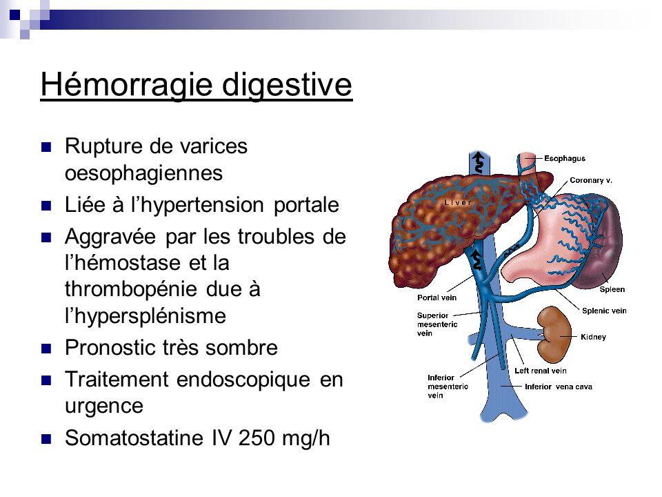 Hémorragie digestive Rupture de varices oesophagiennes