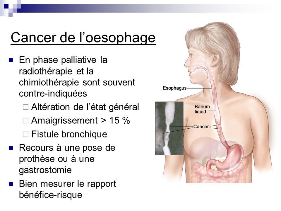 Cancer de l'oesophage En phase palliative la radiothérapie et la chimiothérapie sont souvent contre-indiquées.