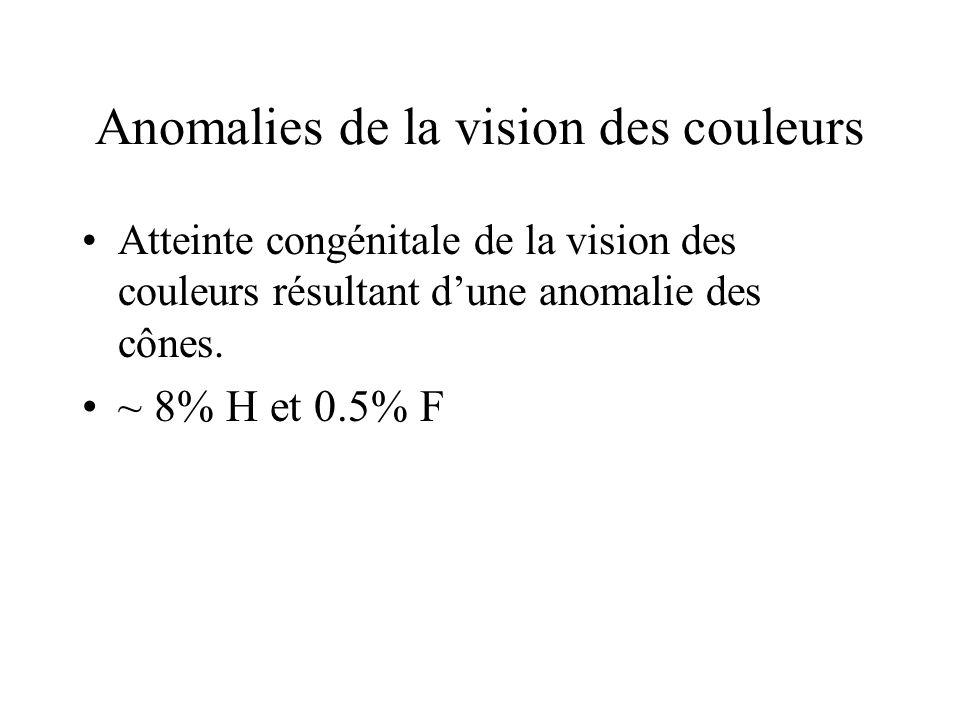 Anomalies de la vision des couleurs