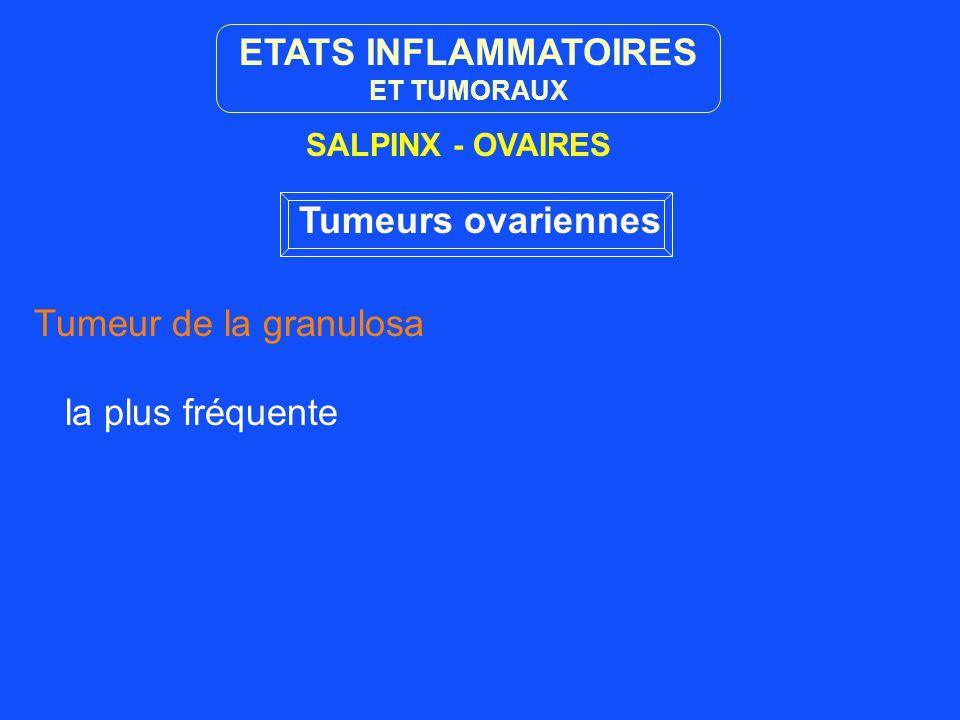 ETATS INFLAMMATOIRES Tumeurs ovariennes
