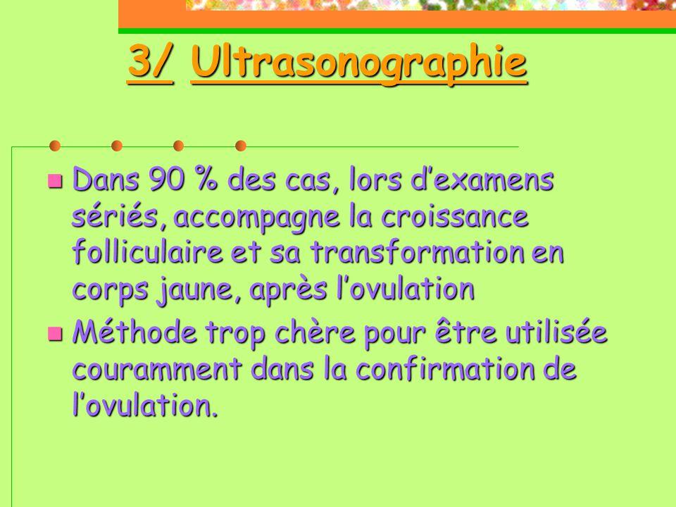 3/ Ultrasonographie