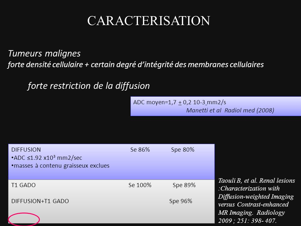 CARACTERISATION Tumeurs malignes forte restriction de la diffusion
