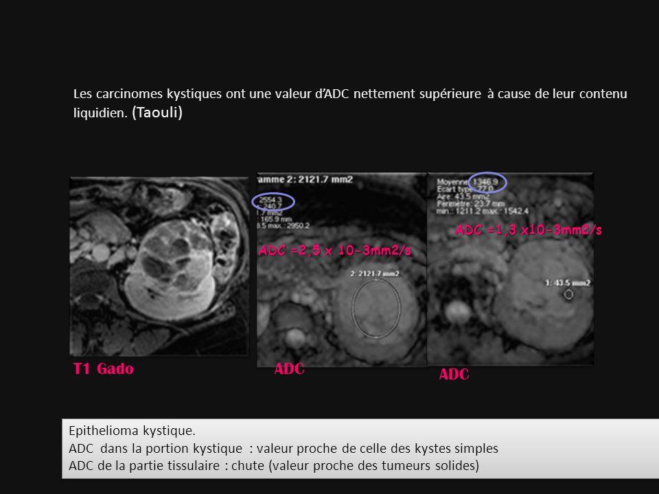 Les carcinomes kystiques ont une valeur d'ADC nettement supérieure à cause de leur contenu liquidien. (Taouli)