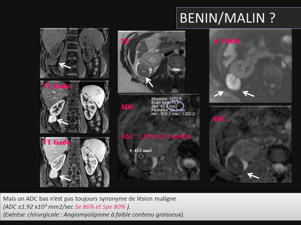 BENIN/MALIN T2 b 1000 T1 Gado ADC ADC T1 Gado