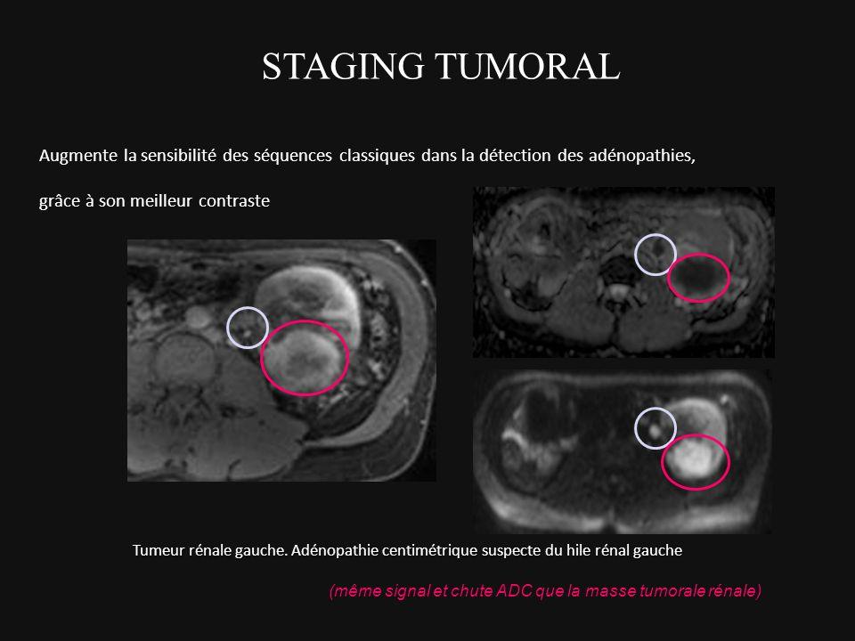 STAGING TUMORAL Augmente la sensibilité des séquences classiques dans la détection des adénopathies,