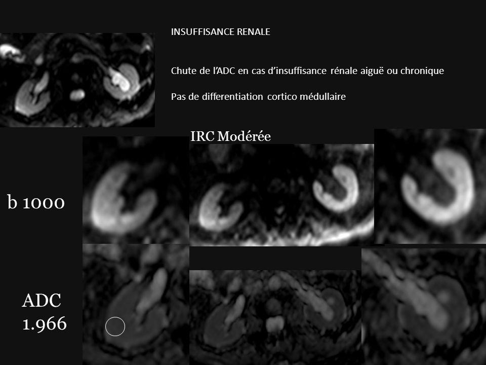 b 1000 ADC 1.966 IRC Modérée INSUFFISANCE RENALE